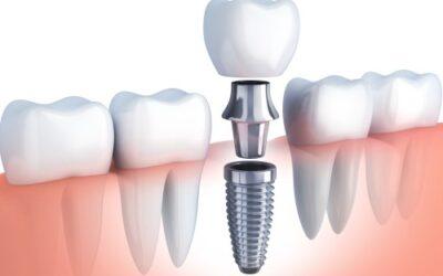 Totul despre implanturile dentare